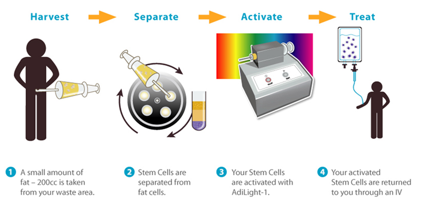 Stem cell procedure